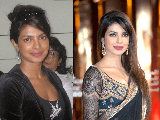 11 Bollywood Actress Who Went Ugly To Beautiful
