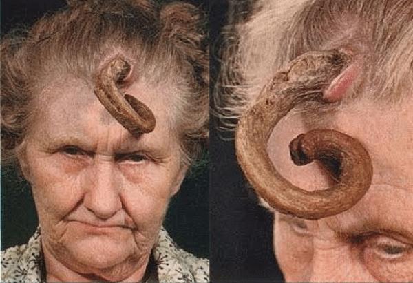 Cutaneous Horns