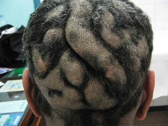 Cutis Verticis Gyrata (Brainy Scalp)