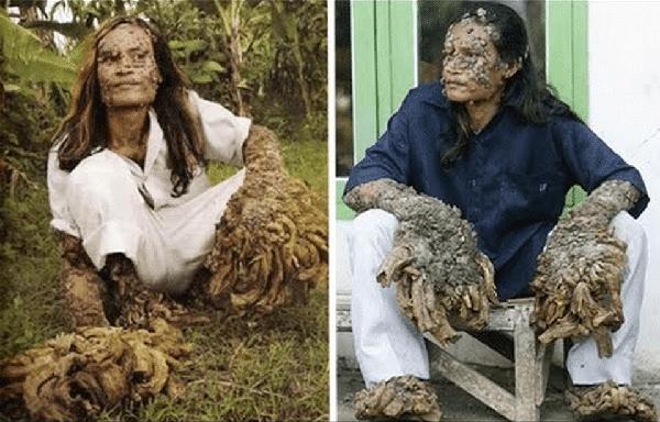 Epidermodysplasia Verruciformis or Tree bark skin disorder