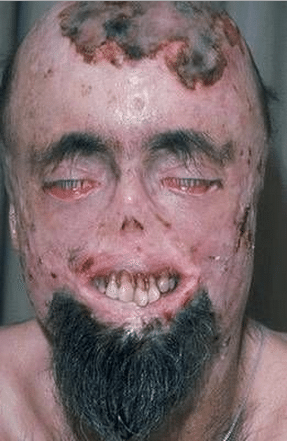 Porphyria- Vampire Disease