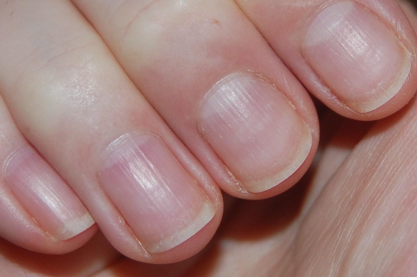 Почему на ногтях появляются бороздки