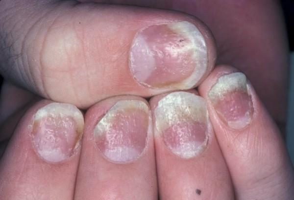 nail-psoriasis