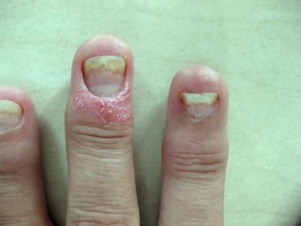 psoriasic-arthritis-reumatek-002