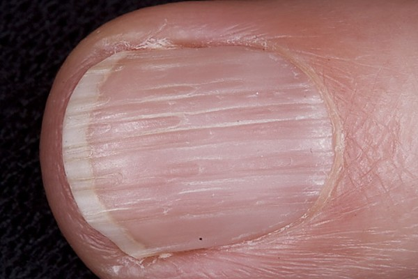 ridged-nails