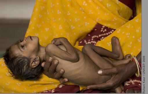 Malnutrition-India
