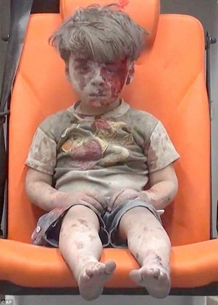 bloodied syrian kid